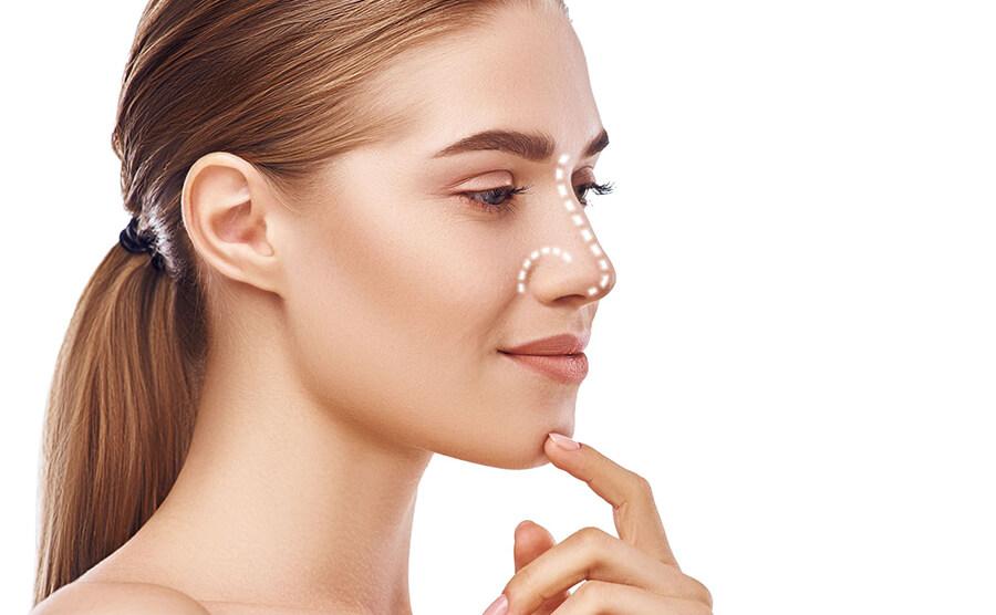 cirurgia-no-nariz