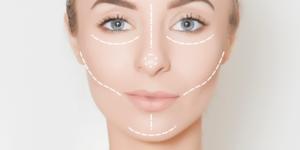 Tudo sobre Harmonização Facial