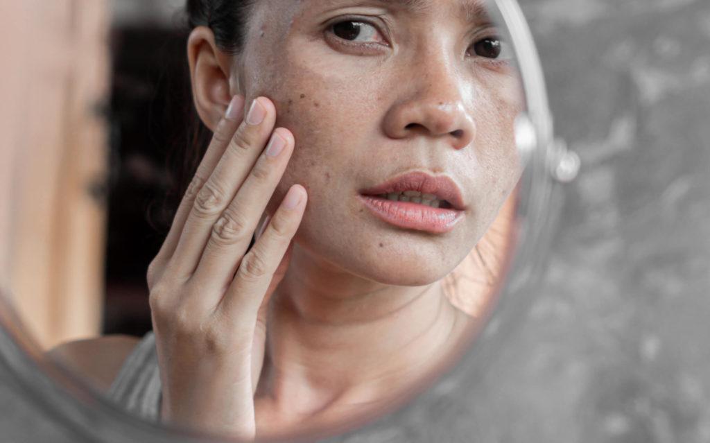 Melasma: cuidados e tratamentos no verão